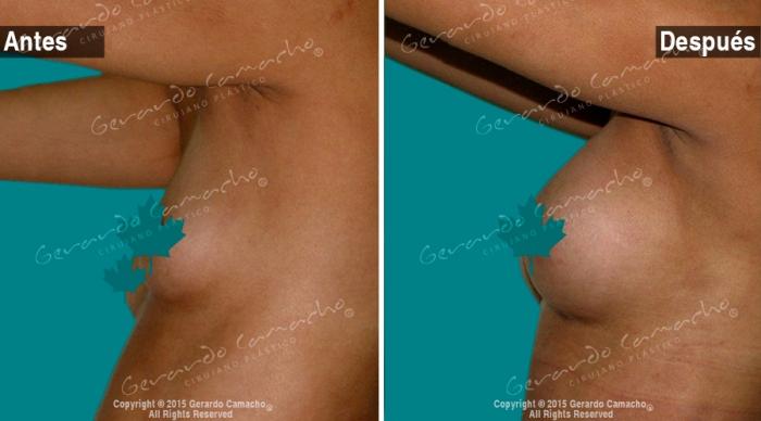 implantes-mamarios-bogota-gerardo-camacho-_2